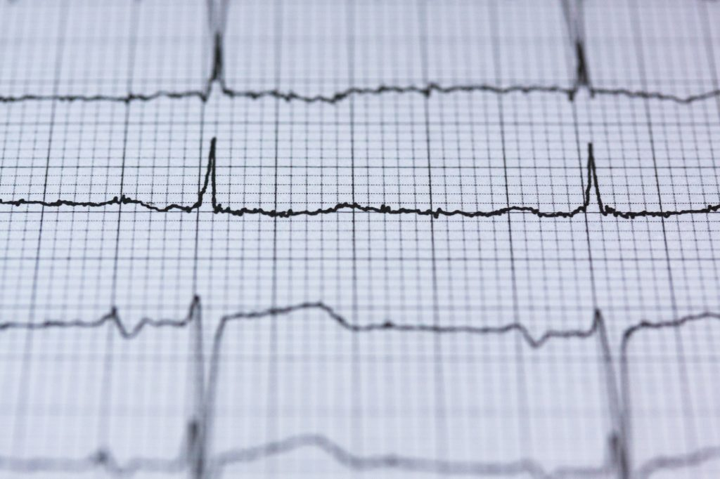 kardiologia serce